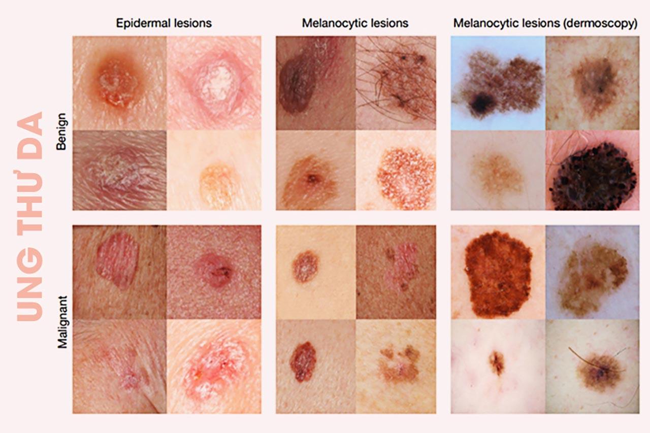 các loại ung thư da